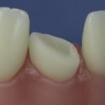 Dentes Diferenciados 145