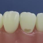 Dentes Diferenciados 144