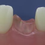 Dentes Diferenciados 137