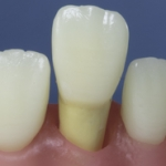 Dentes Diferenciados 134