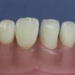 Dentes Diferenciados 172