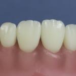Dentes Diferenciados 173