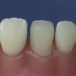 Dentes Diferenciados 133
