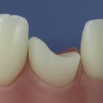 Dentes Diferenciados 122