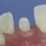Dentes Diferenciados 120