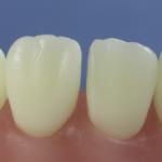 Dentes Diferenciados 119