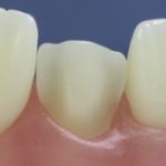 Dentes Diferenciados 118
