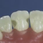 Dentes Diferenciados 117