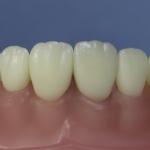 Dentes Diferenciados 174