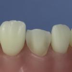 Dentes Diferenciados 175