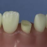 Dentes Diferenciados 150
