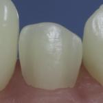 Dentes Diferenciados 34