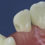 Dentes Diferenciados 116