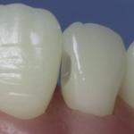 Dentes Diferenciados 115