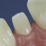 Dentes Diferenciados 113