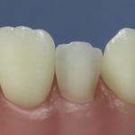 Dentes Diferenciados 170