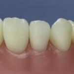 Dentes Diferenciados 171