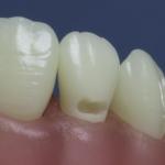 Dentes Diferenciados 132