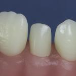 Dentes Diferenciados 168