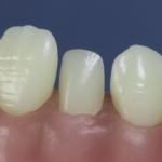 Dentes Diferenciados 131