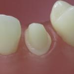 Dentes Diferenciados 111