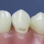 Dentes Diferenciados 110