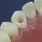 Dentes Diferenciados 109
