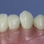 Dentes Diferenciados 167