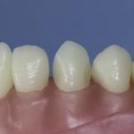 Dentes Diferenciados 166