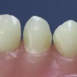 Dentes Diferenciados 108