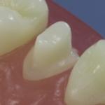 Dentes Diferenciados 105