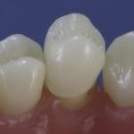 Dentes Diferenciados 128