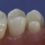 Dentes Diferenciados 127