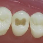 Dentes Diferenciados 31