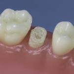 Dentes Diferenciados 149