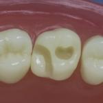 Dentes Diferenciados 30