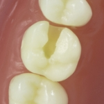 Dentes Diferenciados 101