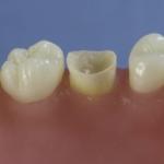 Dentes Diferenciados 143