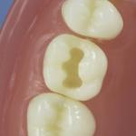Dentes Diferenciados 99