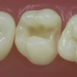 Dentes Diferenciados 29