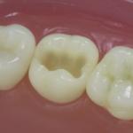 Dentes Diferenciados 88
