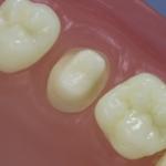 Dentes Diferenciados 87