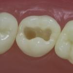 Dentes Diferenciados 98