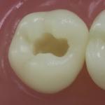 Dentes Diferenciados 28