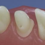 Dentes Diferenciados 27