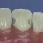 Dentes Diferenciados 86