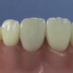 Dentes Diferenciados 165