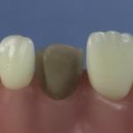 Dentes Diferenciados 164