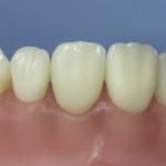 Dentes Diferenciados 163