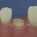 Dentes Diferenciados 152